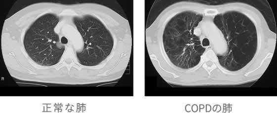 レントゲン 肺気腫